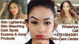 Rustenburg 0815943061 ❤ Skin Lightening Bleach Spots Remover Pills Cream for sale in Klerksdorp Potchefstroom Brits Orkney Lichtenburg Mafikeng 2019-05-26