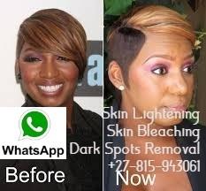 Witbank 0815943061 ❤ Skin Lightening Bleach Spots Remover Pills Cream for sale in Secunda Stellenbosch Centurion Middelburg Malamulele Thabazimbi 2019-05-26